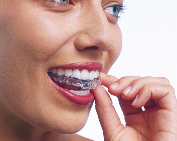 unsichtbare-zahnspange-invisalign-schritt-2