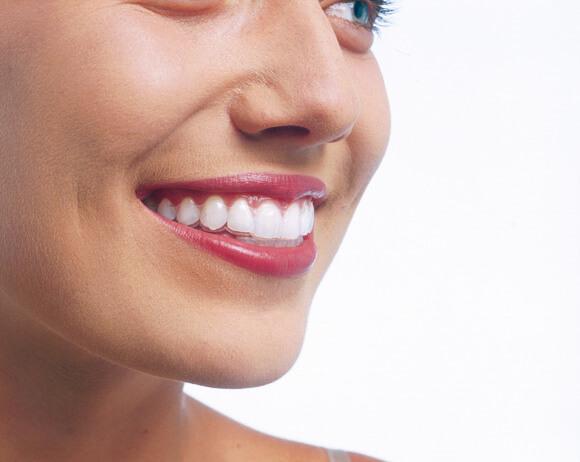 unsichtbare-zahnspange-invisalign-schritt-3