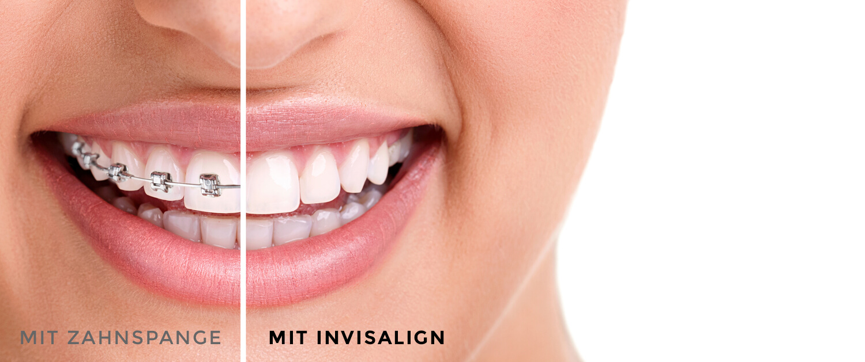 Kieferorthopädie mit herkömmliche Zahnspangen und Invisalign